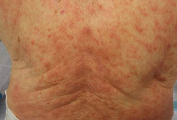 Problemas dermatológicos